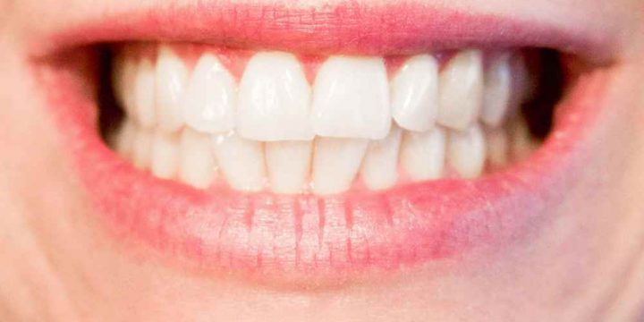 Teeth Whitening Gel – Make Your Smile More Dazzling