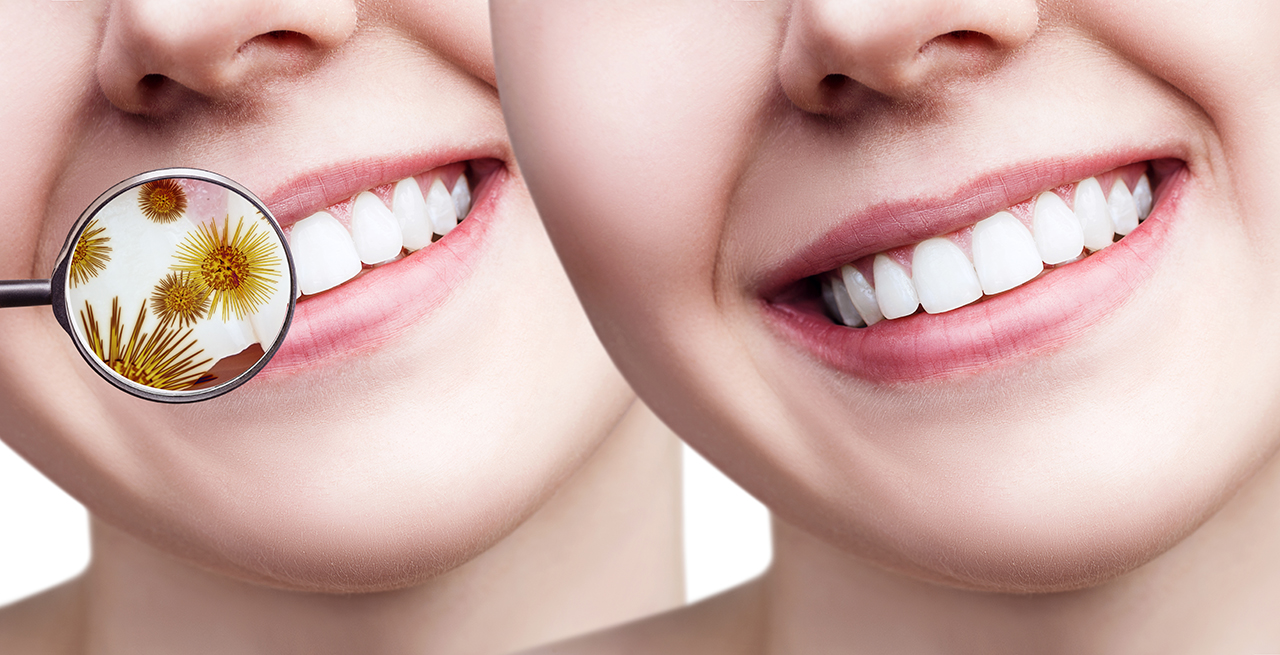 Cosmetic Dentistry That Enhances Dental Health And Beauty