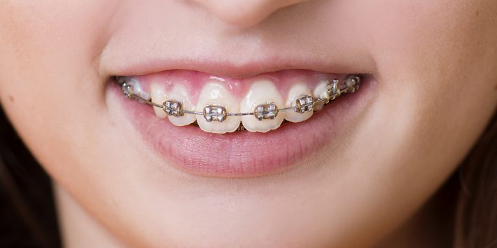 Perfect Braces Colors For Girls Teeth