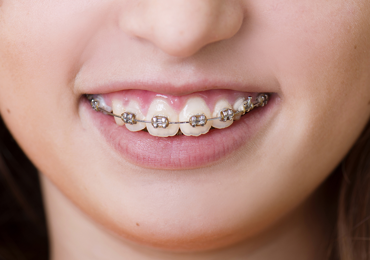 color braces for girls