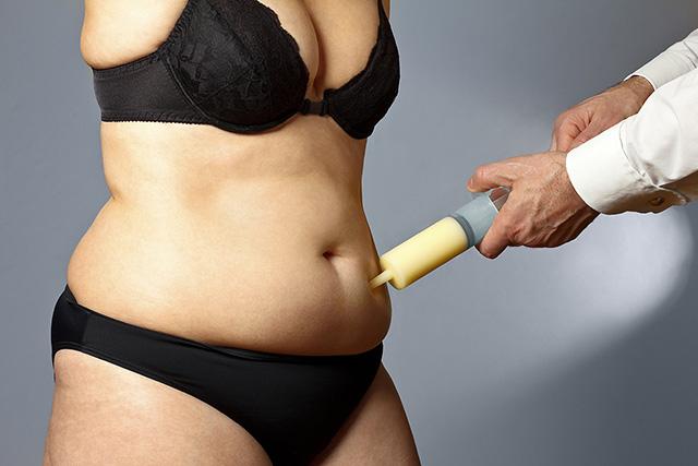 medical liposuction