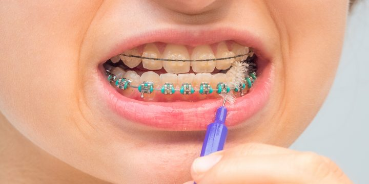 Steps On How Braces Work