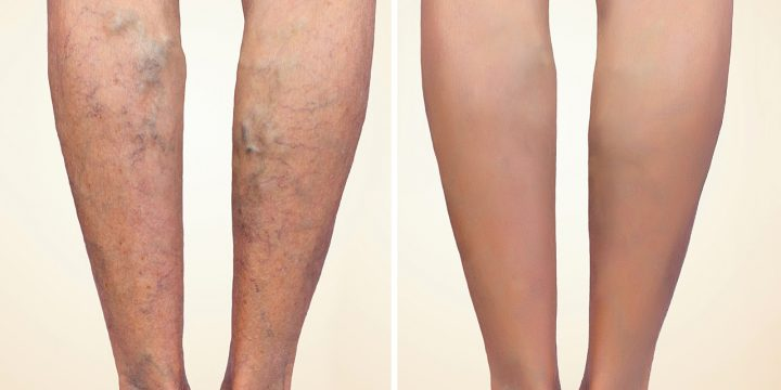 Spider Veins Natural Treatment