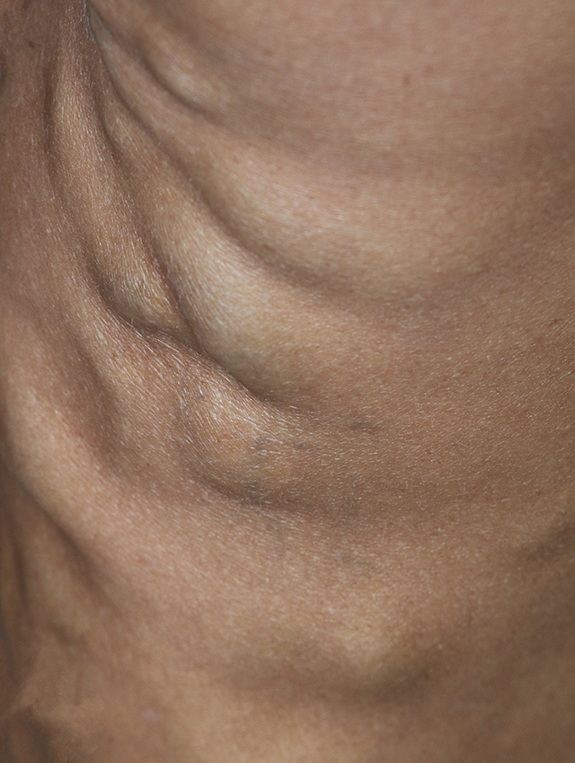 Bulging Veins