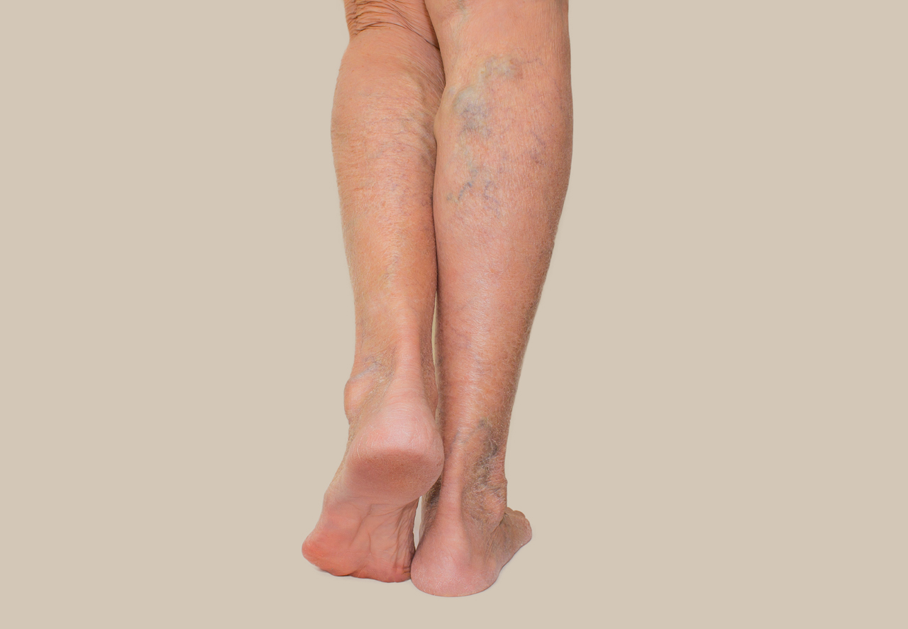 Deep Vein Thrombosis Causes Symptoms and Treatment