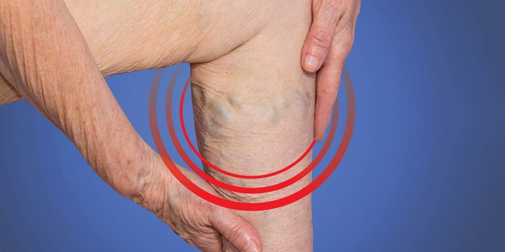 New Treatment For Varicose Veins