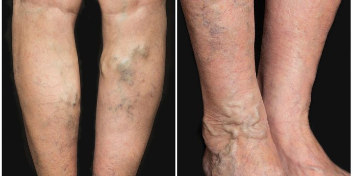 Using Of Essential Oils For Varicose Veins