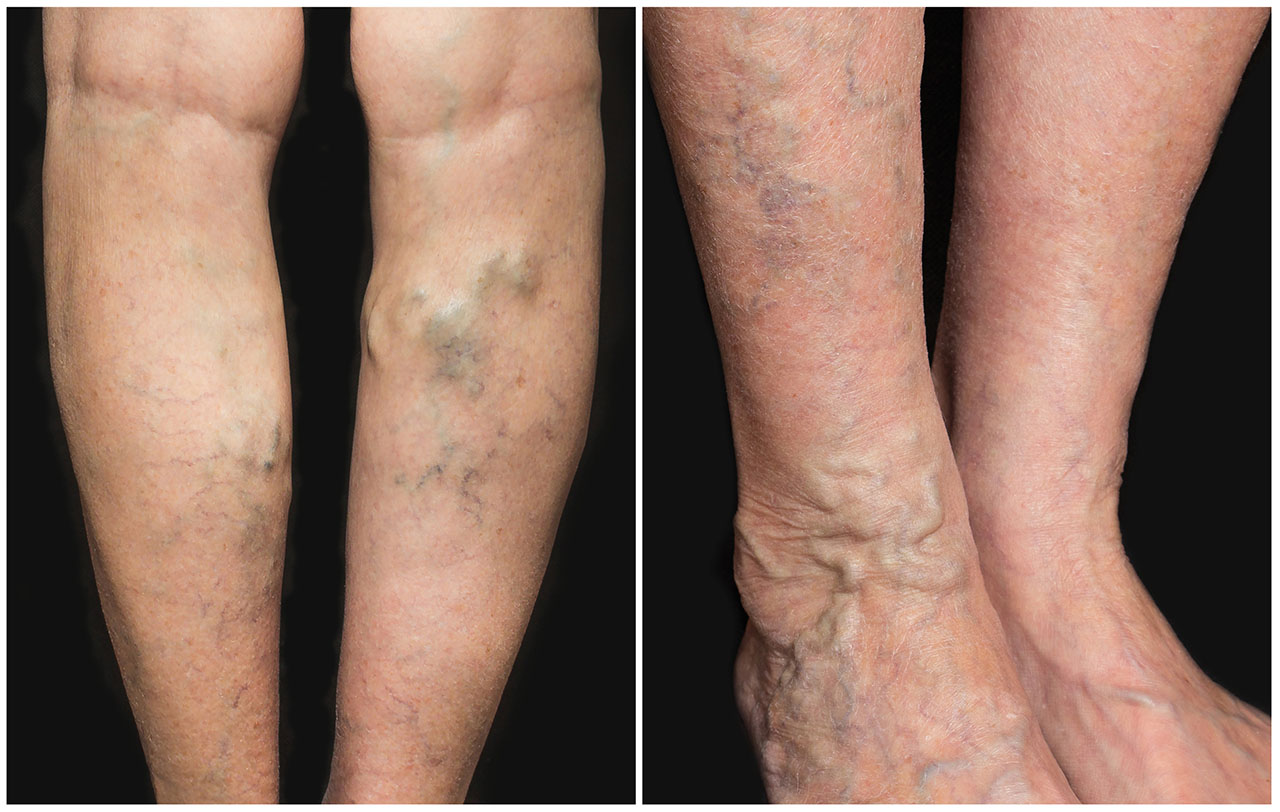 Using Of Essential Oils For Varicose Veins Beauty And