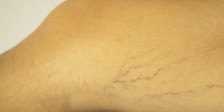 Varicose Veins During Pregnancy Treatment