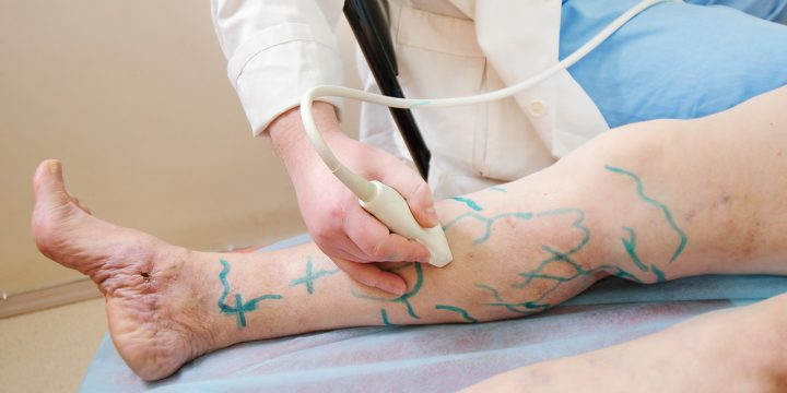 Varicose Vein Laser Treatment Cost