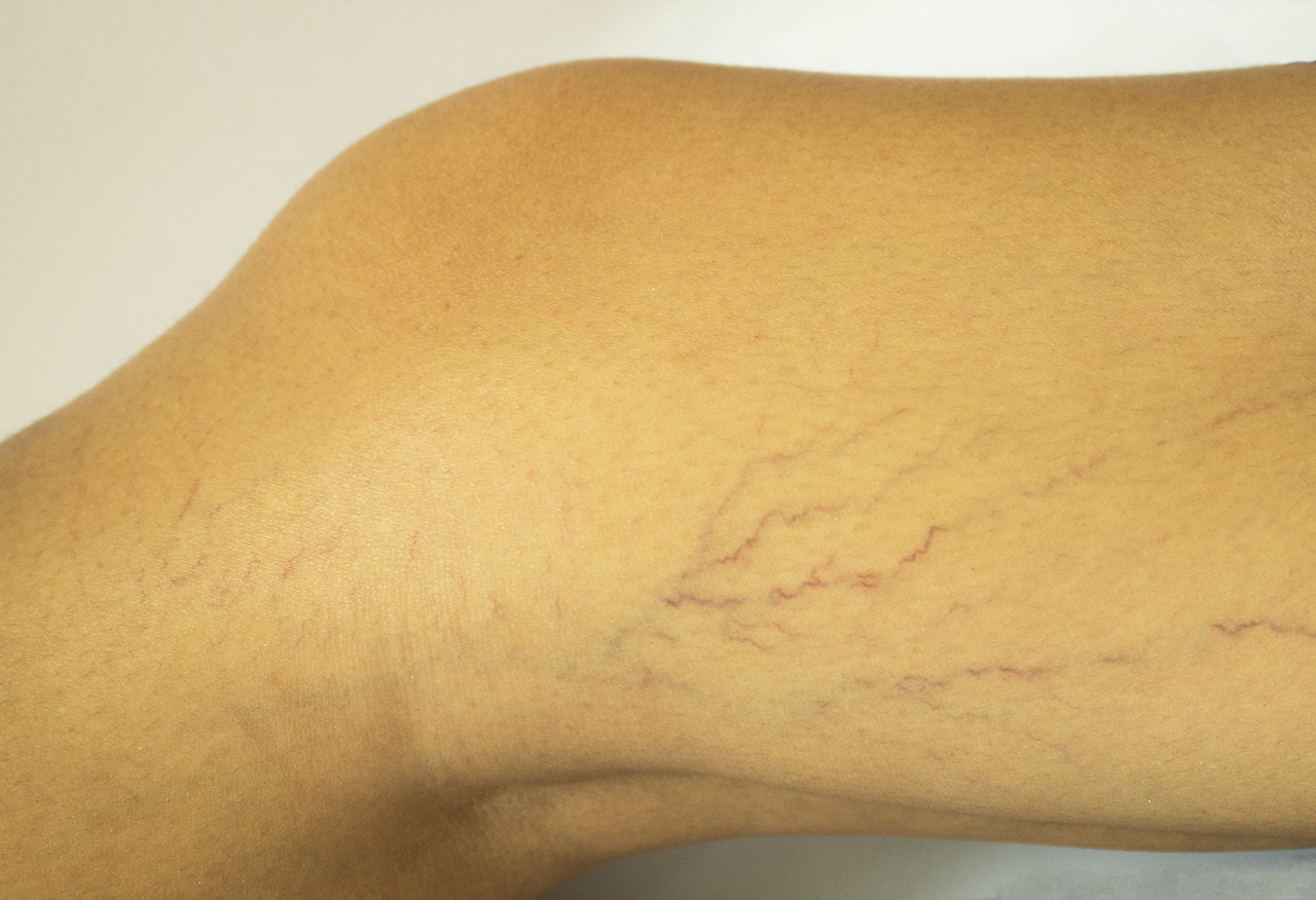 Varicose Veins During Pregnancy Treatment - Beauty and ...