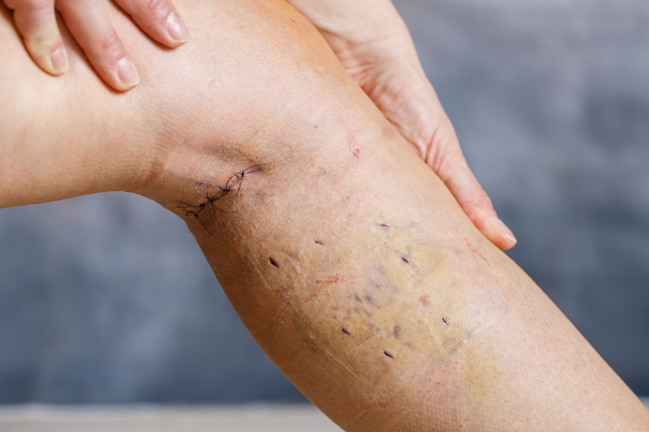 Best Procedure For Varicose Veins Stripping