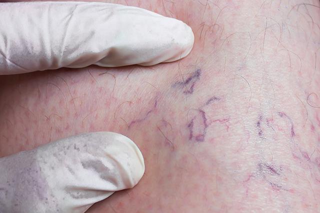 varicose veins in breast