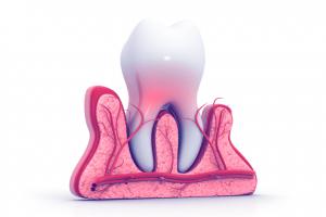 Dental Nerve Damage