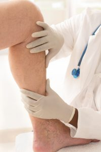 Varicose Vein Surgery Recovery That's Right For You