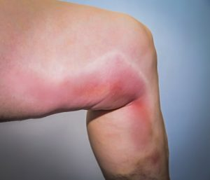 red and swollen leg is one of the thrombophlebitis symptoms