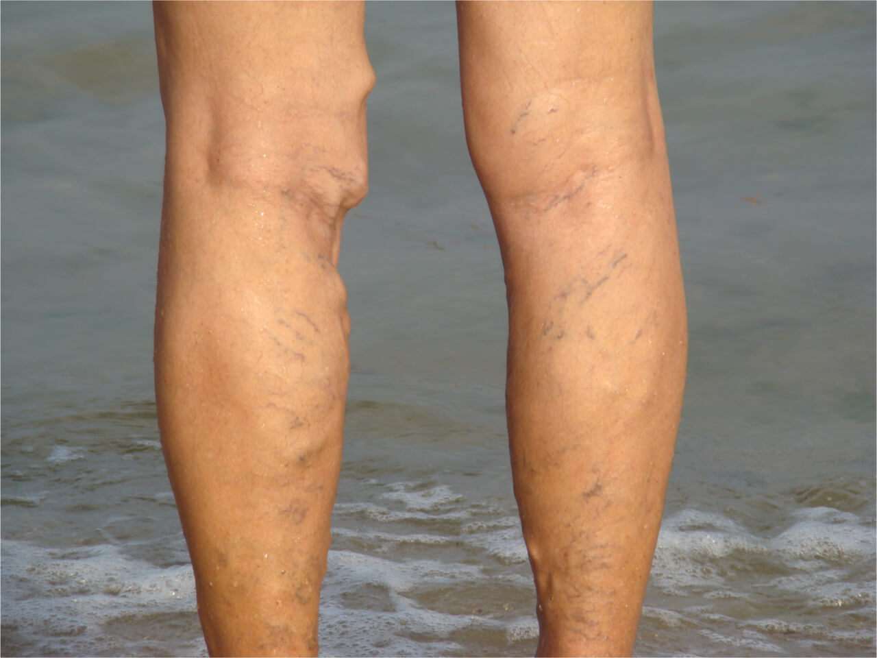 leg thrombophlebitis symptoms and causes