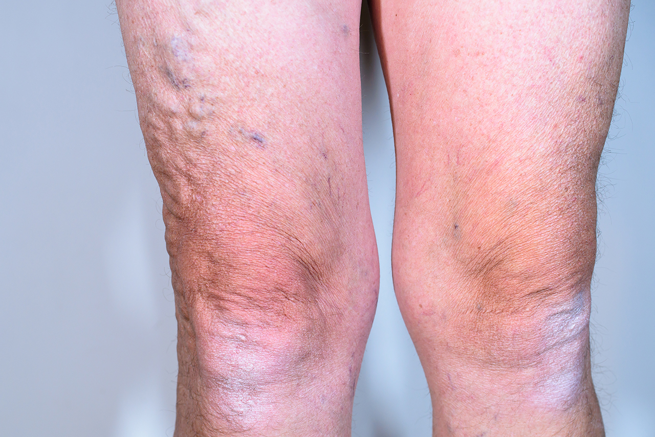 Care After Vein Ablation