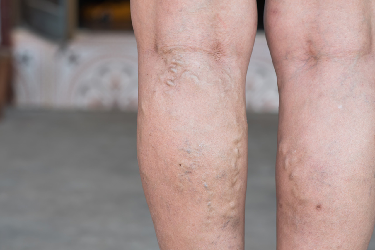 How Vein Stripping is Used For Removal of Varicose Veins