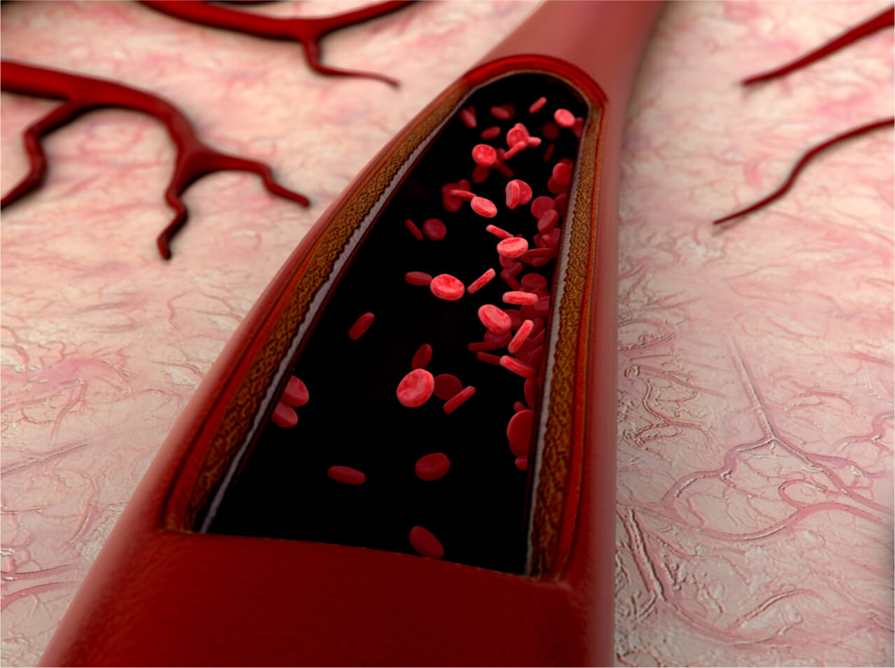 Major Differences Between Arteries and Veins