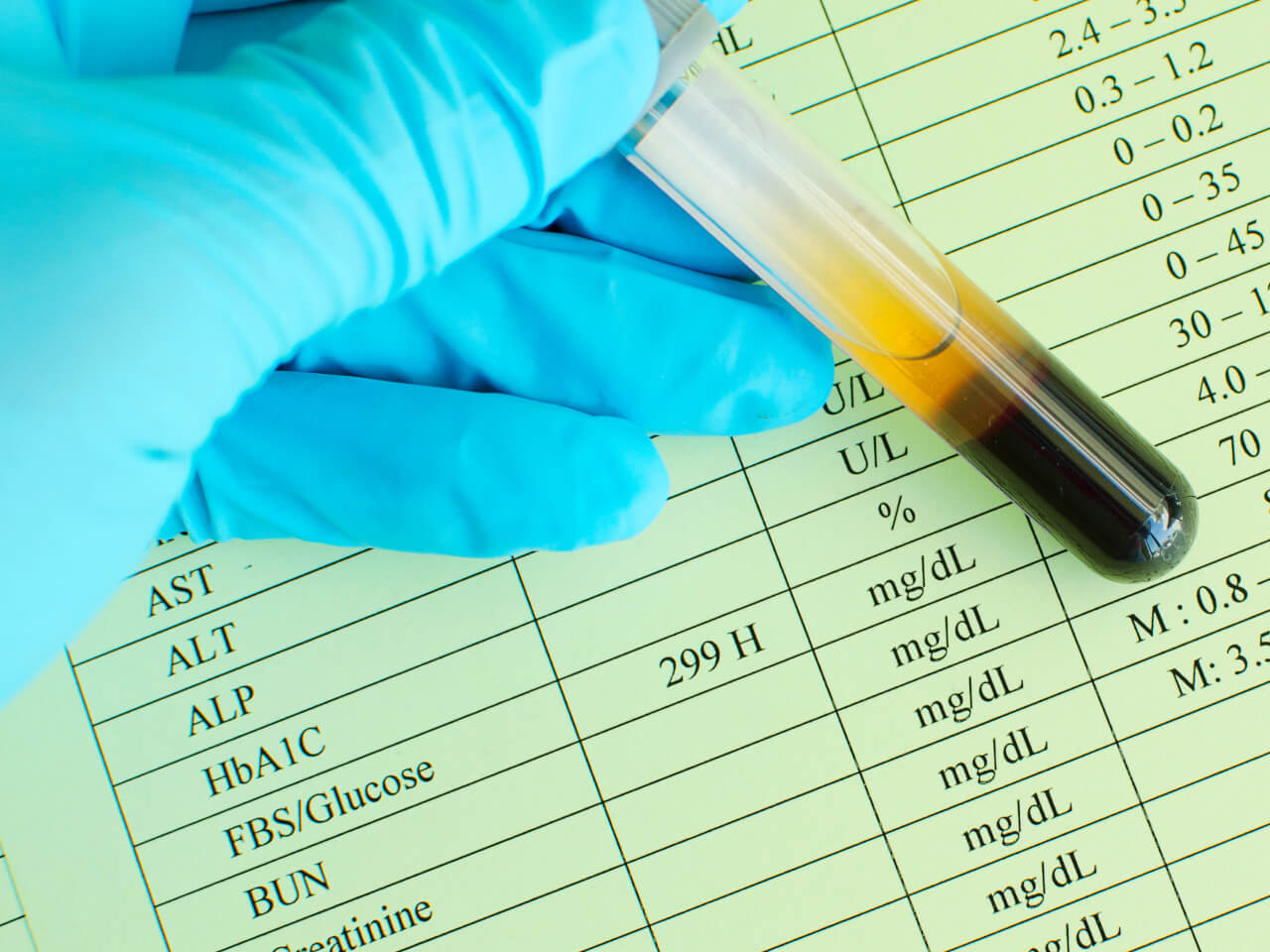How Long To Fast For Blood Test