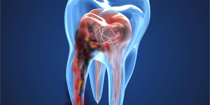 What is a Tooth Nerve Infection