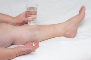 thrombophlebitis treatment