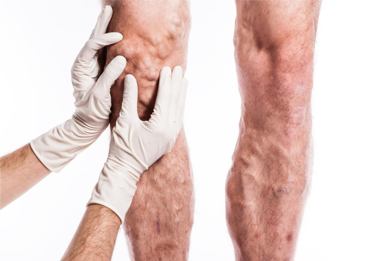 Diagnosis and Treatment of Thrombophlebitis