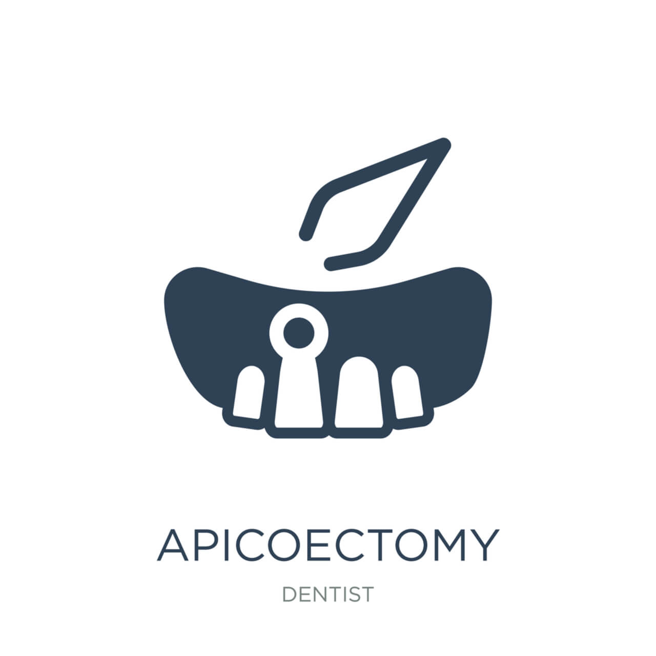 Apicoectomy Procedure