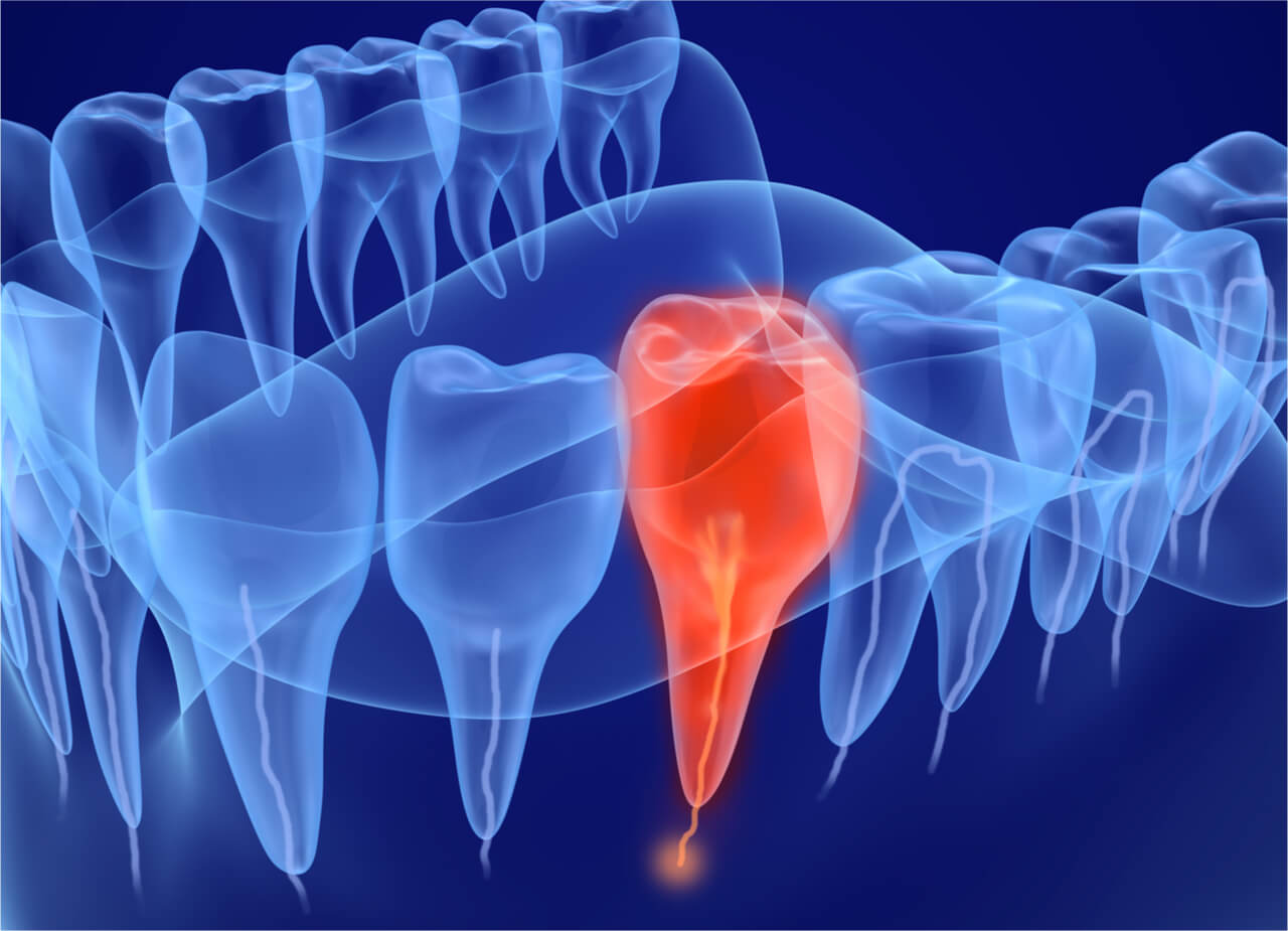 5 Home Remedies for Exposed Nerve Tooth Pain