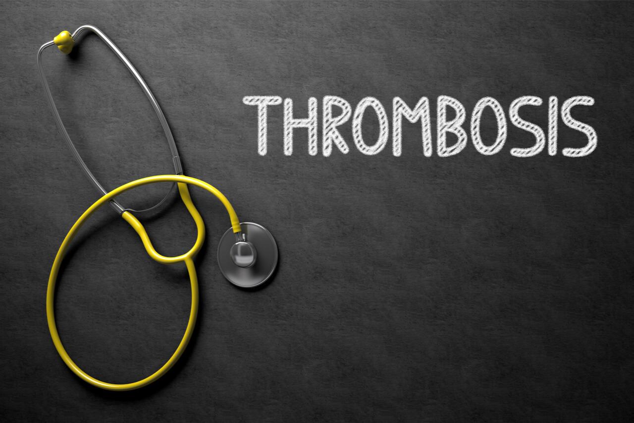 Portal Vein Thrombosis Treatment