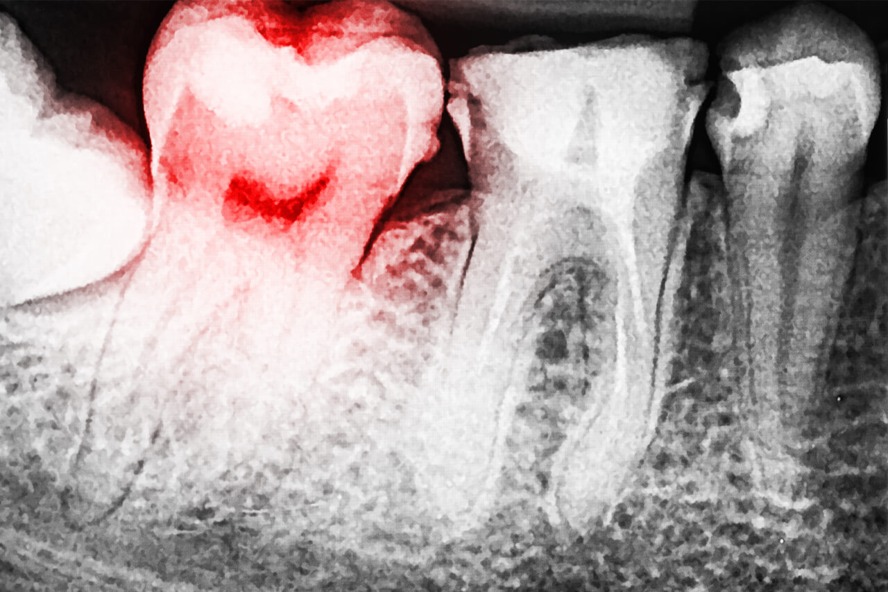 Exposed Tooth Root Pain