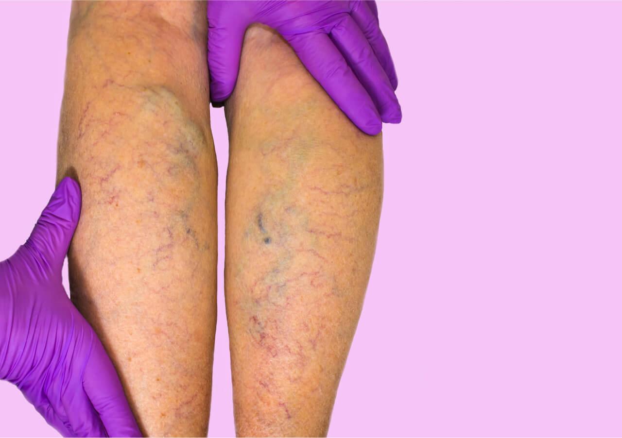 Varicose Vein Treatment Cost
