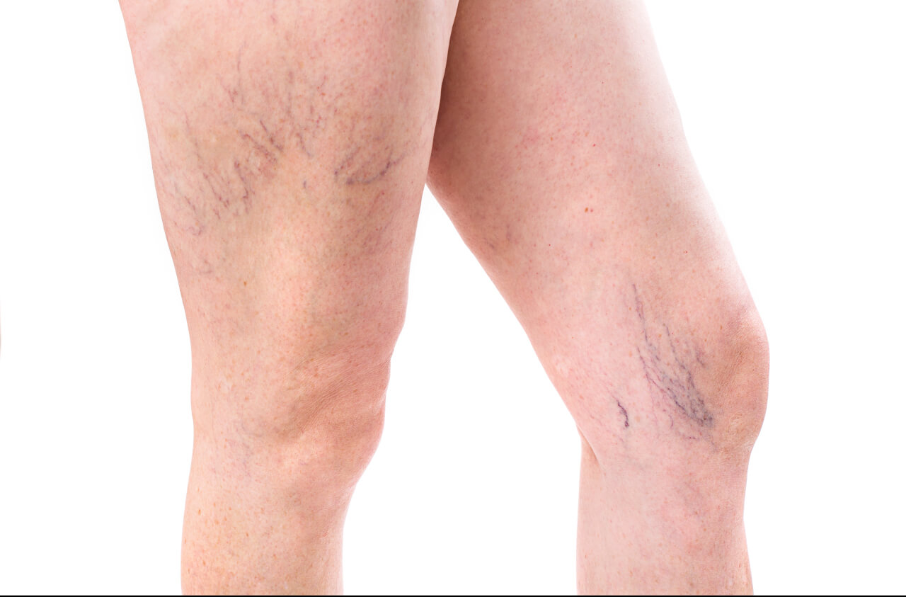 What Causes Veins to be More Visible
