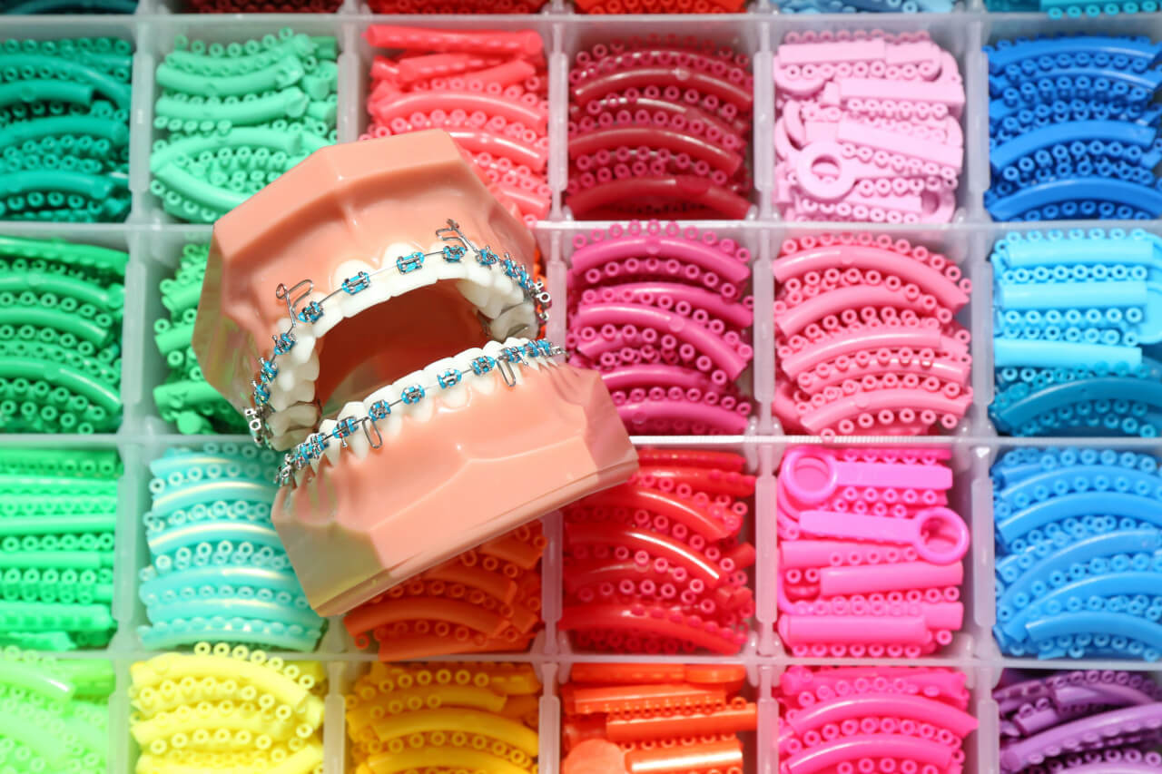 teeth braces colors