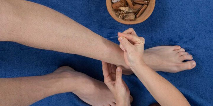 Acupuncture for varicose veins: Does it work?