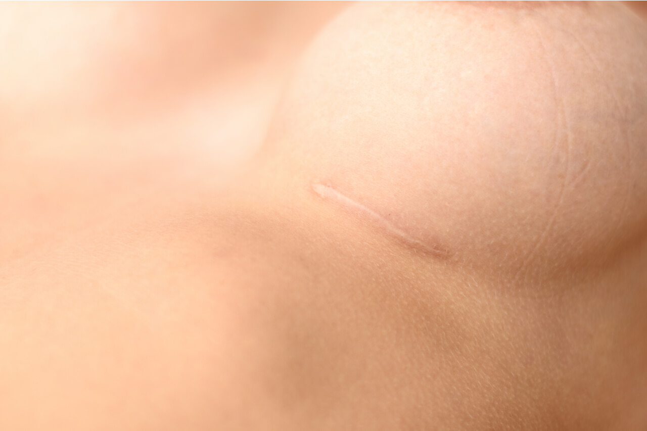 Those unwanted breast augmentation scars…