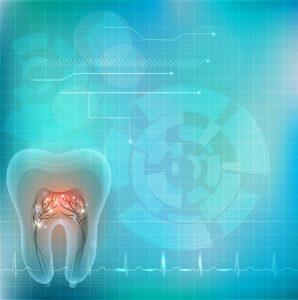 dental implant nerve damage