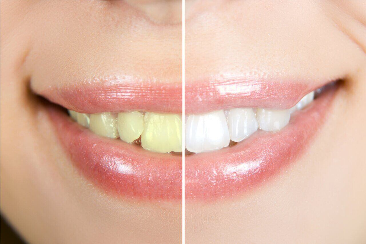 Cosmetic Dentistry Before And Afters (Amazing Smile Transformations)