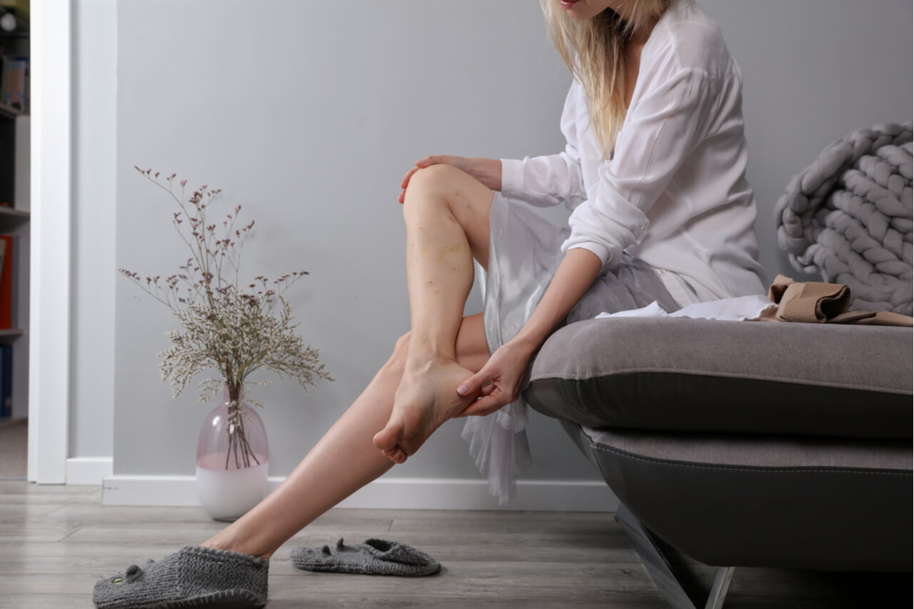What Causes Spider Veins? Prevention and Treatment Options